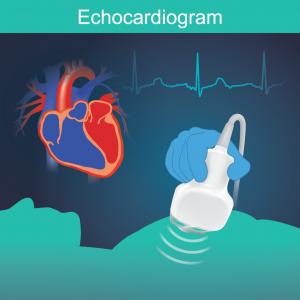 Echocardiography_Citrus-Cardiology-01