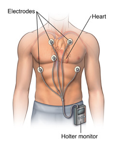 Front view male figure torso with holter monitor and ekg/heart rhythm