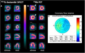 A comparison of SPECT and PET images- Source image-Wikipedia
