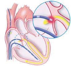 Electrophysiology_Citrus-Cardiology