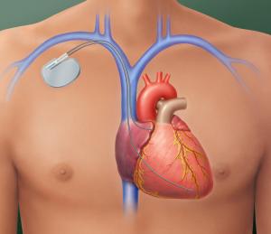 pacemaker_citrus_cardiology